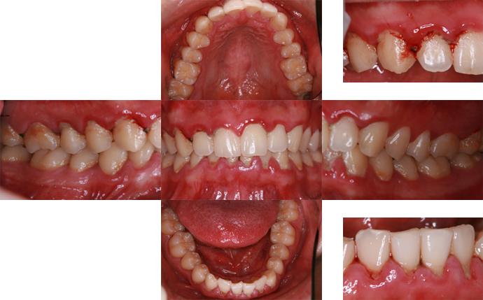 歯茎 腫れ て 痛い